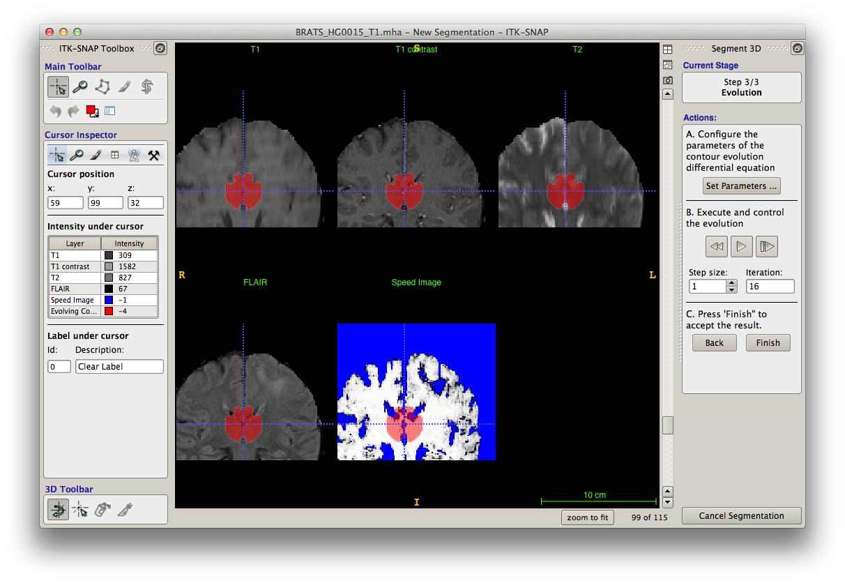 ITK-SNAP Medical Image Segmentation Tool / Wiki / Home